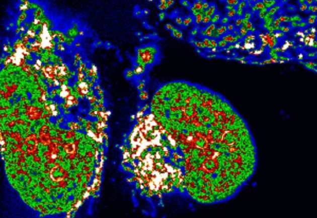 Confocal microscopy image of the new molecule inside human bone cancer cells