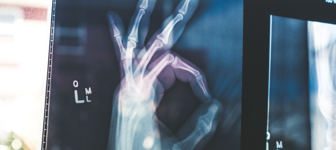 X-ray image of hand