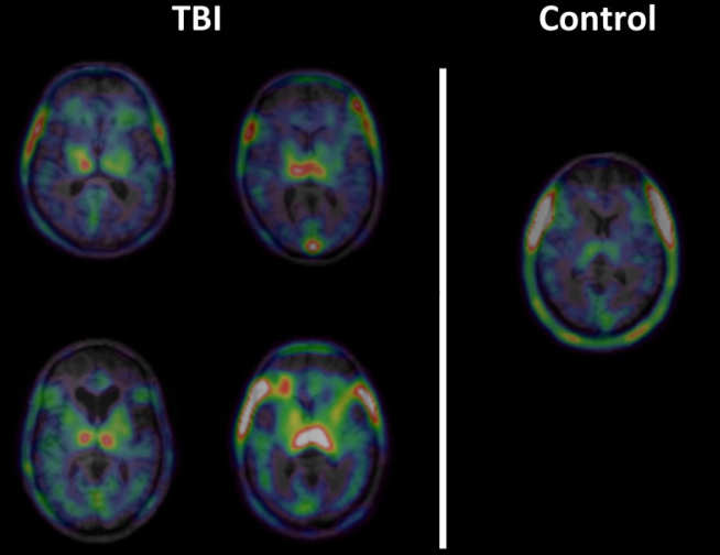 Chronic Inflammation after traumatic brain injury