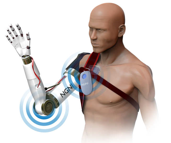 Next generation assistive technology will incorporate sensory feedback in addition to motor control to enable a more natural prosthesis