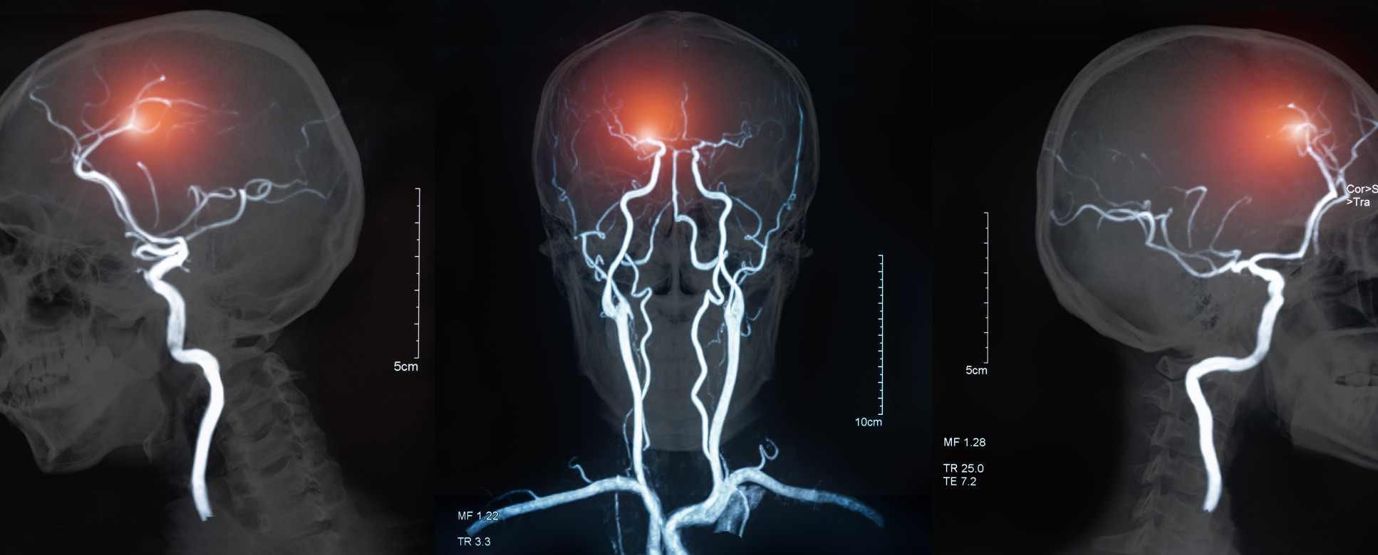 MRI of the blood vessels in the brain and cerebrovascular disease or or hemorrhagic stroke. brain stroke x-ray image.
