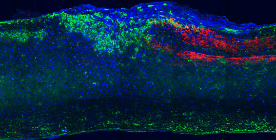 Dextran-red tracing of sensory DRG axons following spinal cord injury