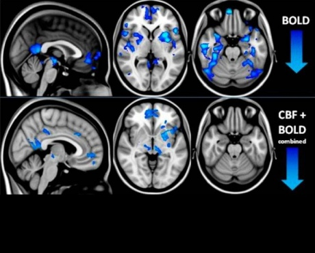 This Is Your Brain on Microdoses of Psilocybin ...