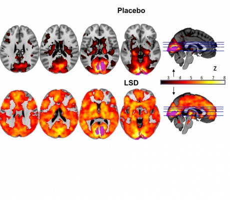 This image shows how, with eyes-closed, much of more of the brain contributes to the visual experience under LSD than under placebo â?? and that the magnitude of this effect correlated with participantsâ?? reports of complex, dreamlike visions.