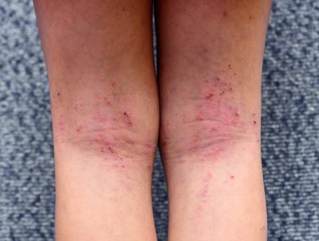 Immune system overreaction may trigger eczema into becoming long