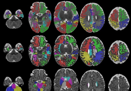 Columns of images show brain scans of newborn babies