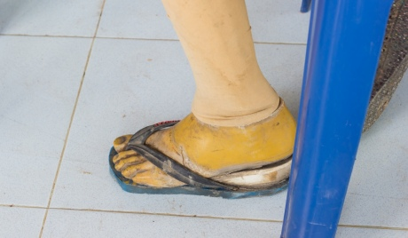 Many patients in Sri Lanka do not have access to basic prosthetics