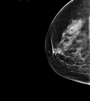 Research Collaboration Aims To Improve Breast Cancer Diagnosis