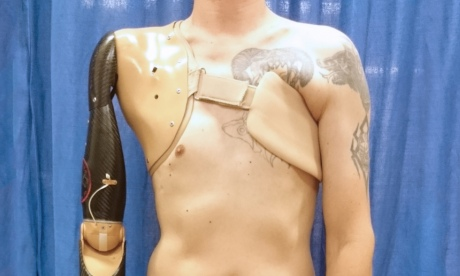 A prosthetic arm attached to a man