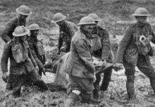 WW1 surgeons could do little for amputees' pain