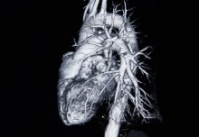 Immune system linked to lower heart attack risk, study suggests