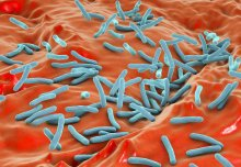 New insight into the progression of tuberculosis infection