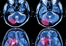 International project launches to prevent stroke in patients with brain bleeding