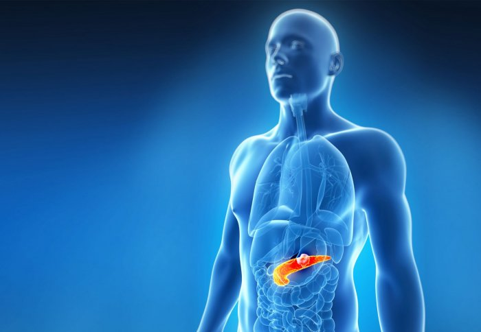 Researchers Slow Pancreatic Cancer Growth And Spread By Blocking Key