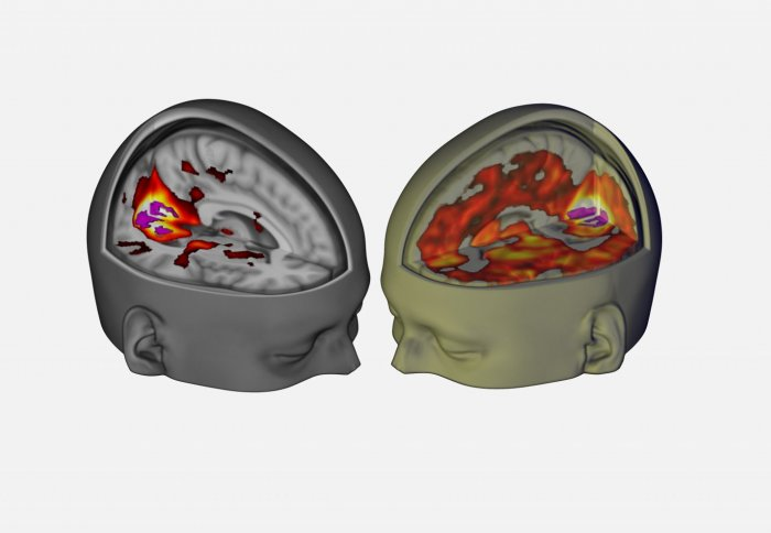 Brain on LSD vs placebo