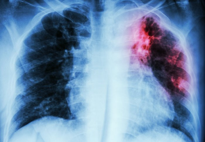 X-ray of lungs where one has red areas