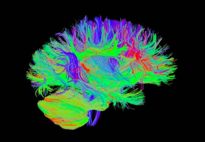 Brain injury: Scientist reveals impact of Imperial's research on