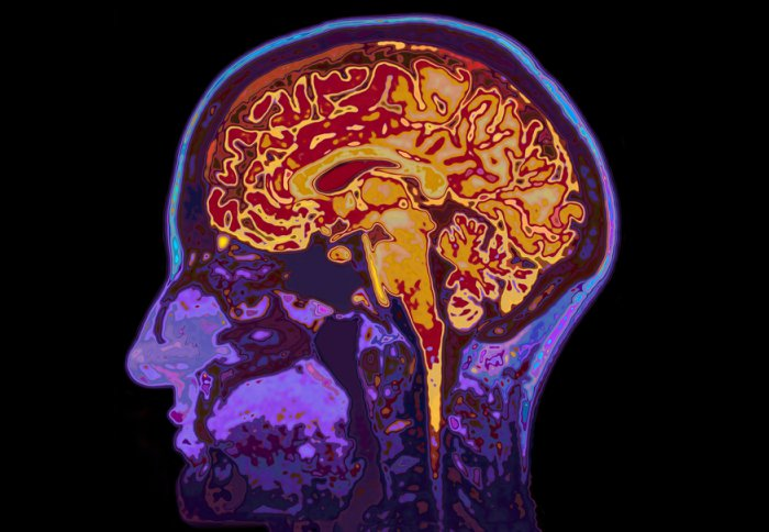 Could Modified Alzheimers Drug Treat >> Alzheimer S Disease Could Be Treated With Gene Therapy