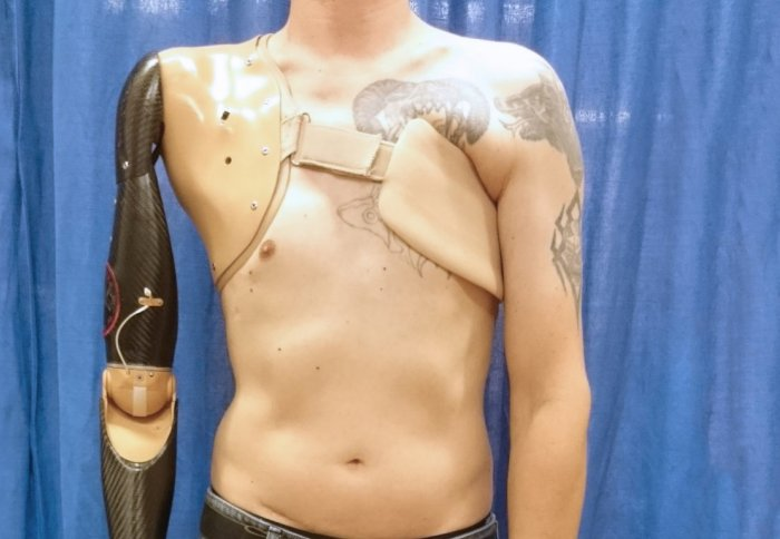 The robotic prosthetic on the right is controlled by the sensor under the left arm