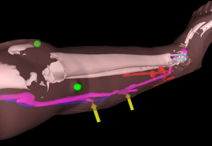 Augmented reality models reveal the patient's bones and blood vessels