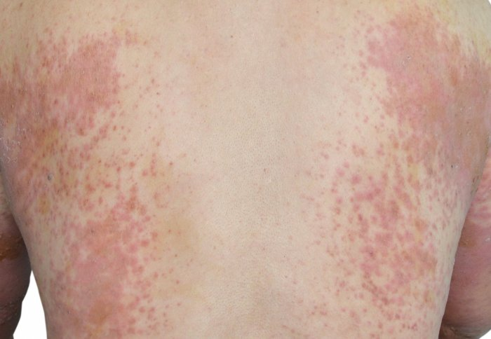 Can Certain Foods Trigger Shingles