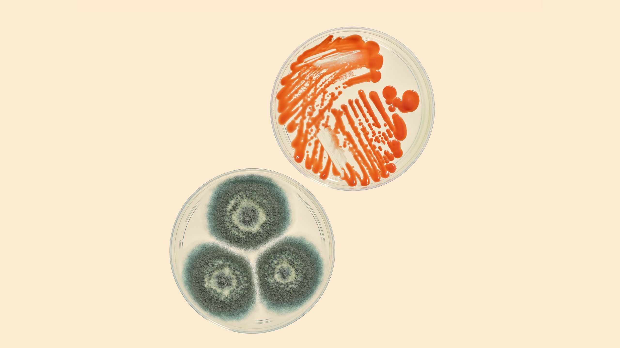 Petri dishes showing the moulds rhodotorula glutinis and aspergillus fumigatus
